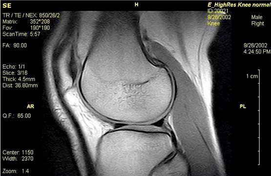 MRI Scan of a healthy 'normal' knee