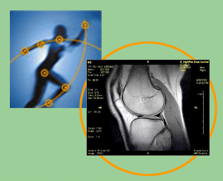 private mri scans hip knee image